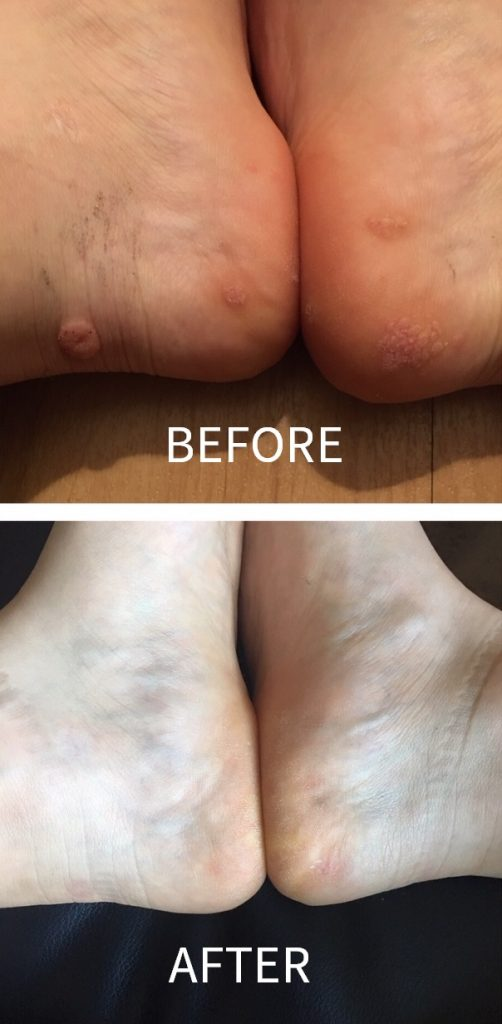 Before and after photos showing how I healed my warts naturally with vitamin A treatment